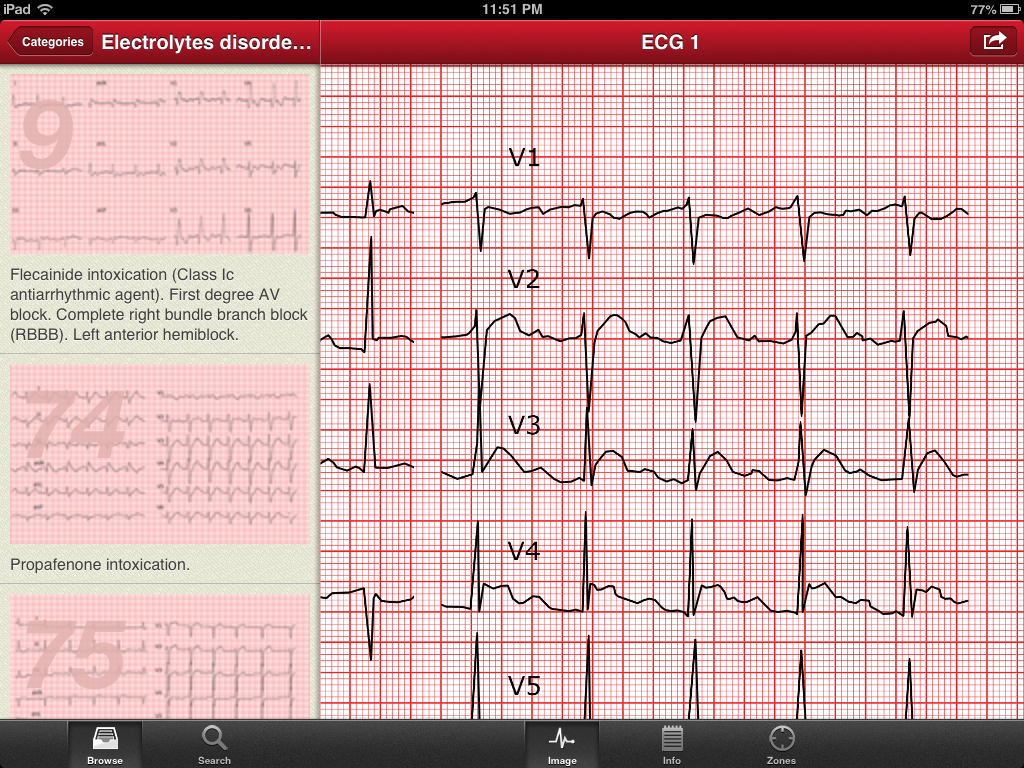 the ecg collection ipad app