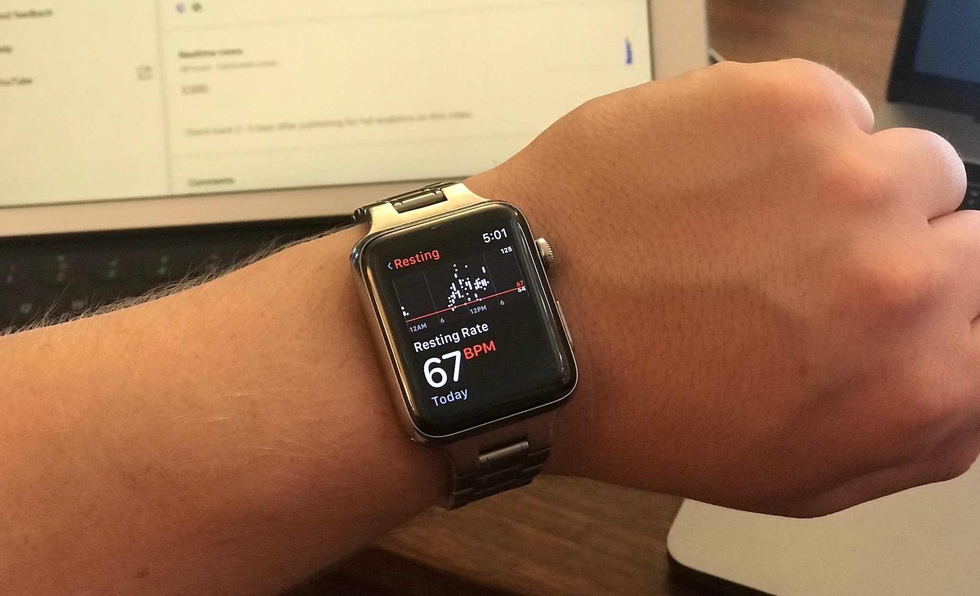 Apple Smartwatch saves life of young Australian heart patient