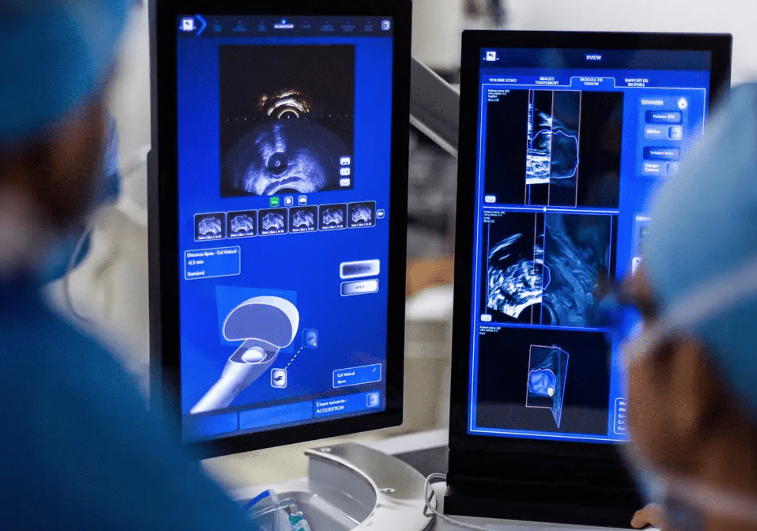 Use of Technology by Laser in Prostate Surgery